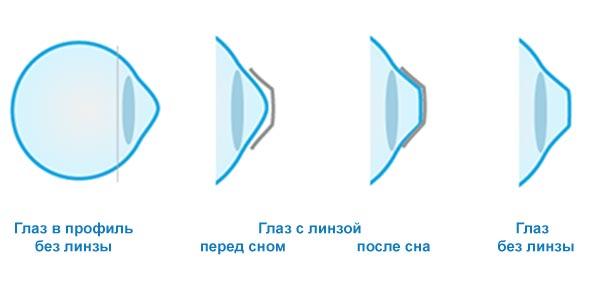 Kak-dejstvujut-ortokeratologicheskie-linzy