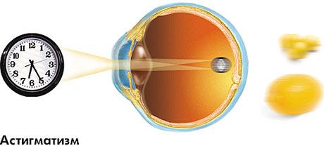 astigamatizm