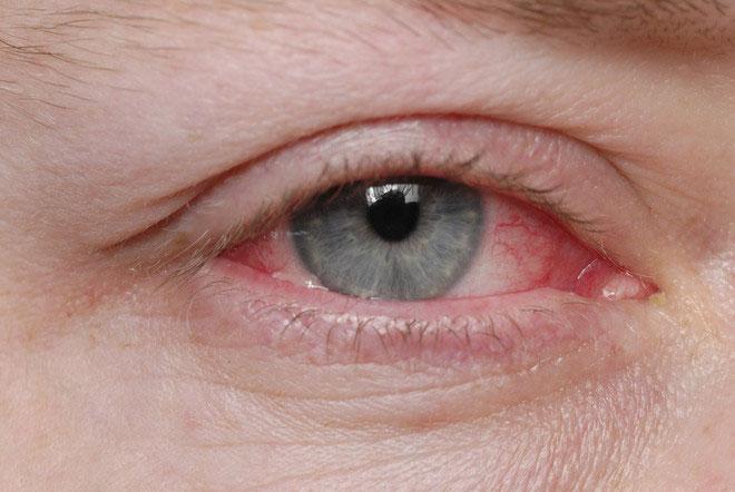 Конъюнктивит после контактных линз