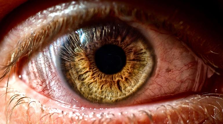 Синдром сухого глаза: симптомы и как лечить заболевание