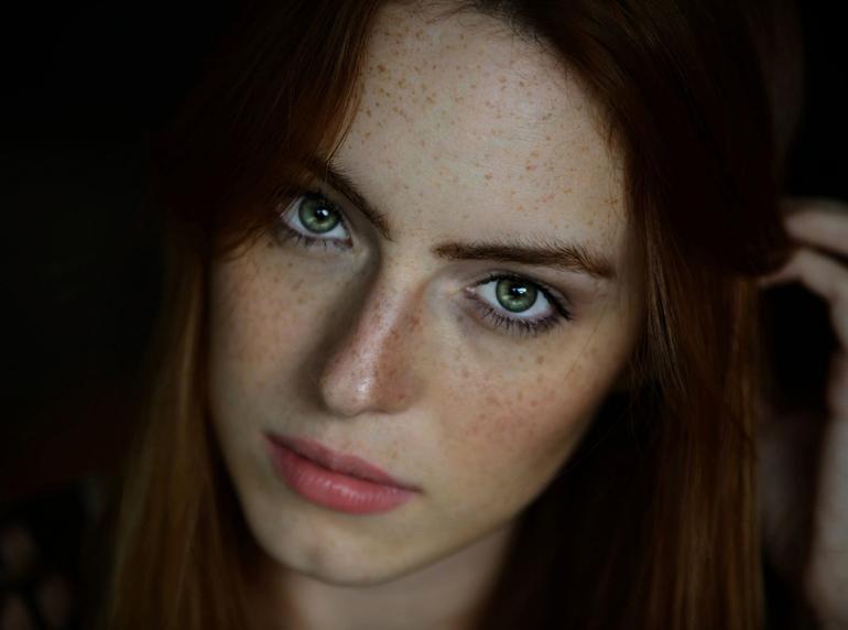 Пигментный невус хориоидеи глаза, родинка на глазном яблоке, невус радужки глаза
