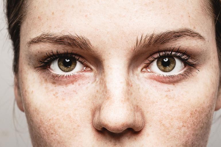 Один глаз видит мутнее другого