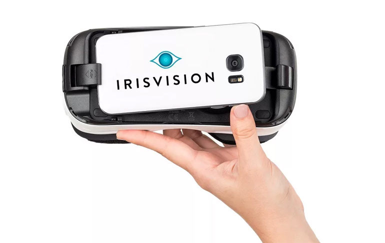 разработка IrisVision