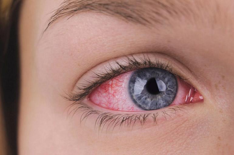 """синдром """"красного глаза"""""""