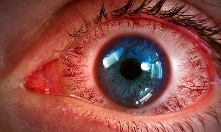 кровоизлияния в глазах