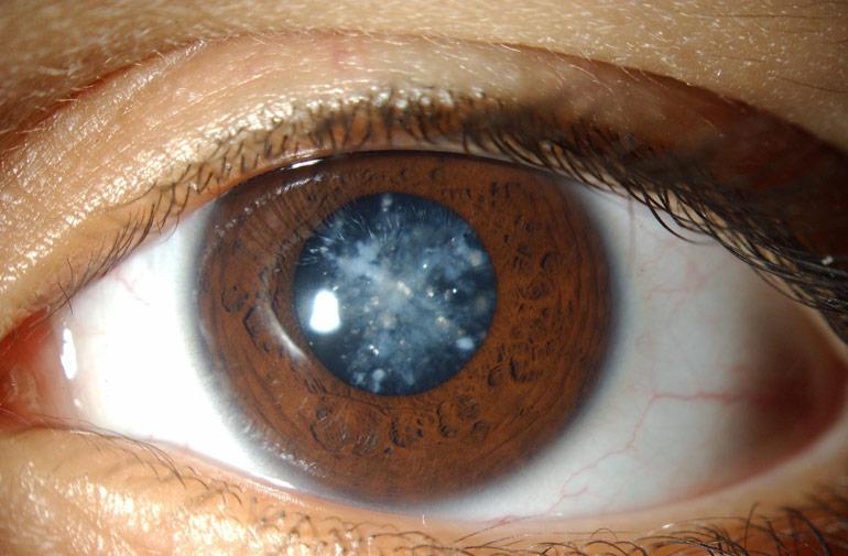 бурая катаракта
